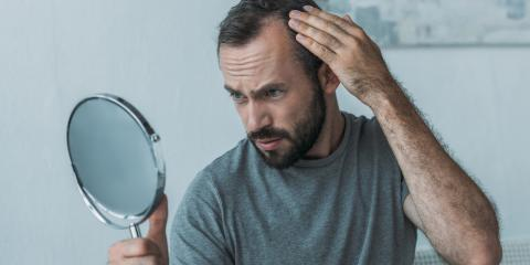 5 Ways to Combat a Receding Hairline, Lexington-Fayette Northeast, Kentucky