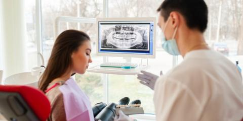 3 Myths About Root Canals, Lexington, North Carolina