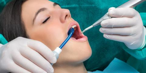 Top 5 Reasons to Get Preventive Teeth Cleanings, Lexington, North Carolina