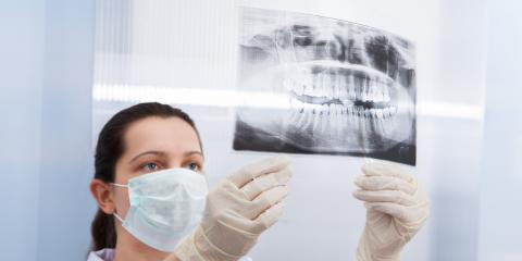 When to Call a Dentist: 4 Warning Signs of Impacted Teeth, Lima, Ohio