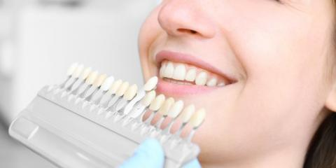 3 Cosmetic Dentistry Techniques to Beautify Your Smile, Lincoln, Nebraska