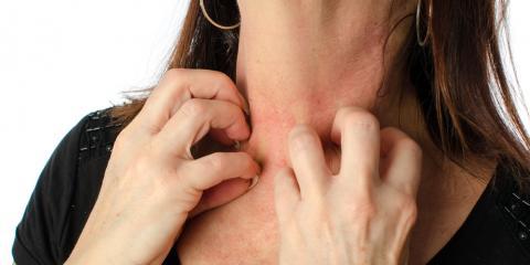 A Lincoln Dermatologist Explains 3 Common Types of Eczema , Lincoln, Nebraska