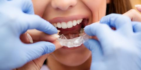 What Is Minor Tooth Movement?, Lincoln, Nebraska