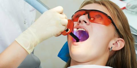 4 Common Tooth Filling Questions, Lincoln, Nebraska