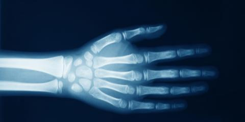 November 8 Is X-Ray Day, London, Kentucky