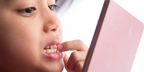 A Dentist Shares 3 Things to Know When Your Child's Adult Teeth Erupt, Honolulu, Hawaii