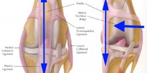 Kneecap Dislocation & It's Symptoms, Clark, Missouri