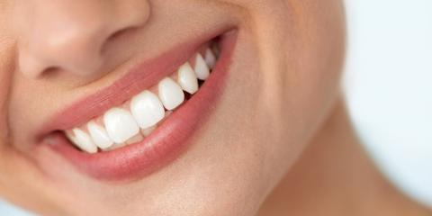 5 Cosmetic Dentistry Procedures & How They Improve Your Smile, Malvern, Arkansas