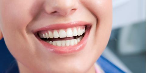 Your Dental Care Guide for Maintaining Healthy Gums, Pine Bluff, Arkansas