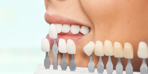 A Brief Guide to Cosmetic Dentistry, Malvern, Arkansas