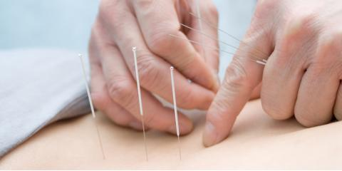 Pain Management: 3 Reasons the FDA Endorses Acupuncture Over Opioids, Nyack, New York