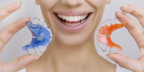 5 Common Questions About Wearing a Retainer, Richmond, Kentucky