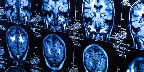 How Does Parkinson's Affect the Brain?, Marlborough, Connecticut