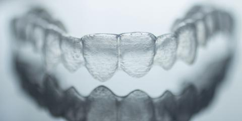 The Evolution of Invisalign® , Cincinnati, Ohio