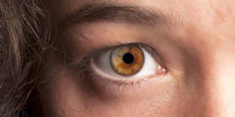 What You Should Know About Heterochromia, Elko, Nevada