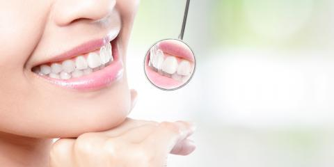 What Patients Should Expect From a Dental Crown Procedure, Mayfield, New York