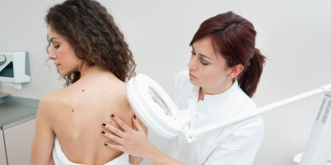 3 Signs You Should Have a Mole Checked for Melanoma, High Point, North Carolina