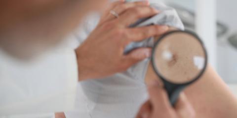 What Are the Warning Signs You Need Melanoma Treatment?, Thomasville, North Carolina