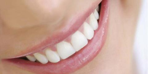 Smile More With the Help of San Bernardino's Best Dentist Office, Chino Hills, California
