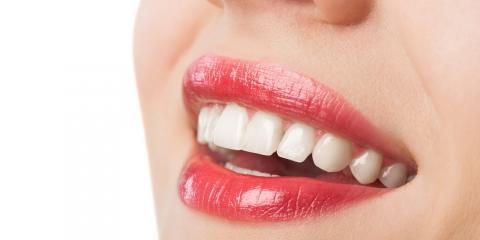 Middlebury Dentist Explains the Benefits of Teeth Whitening, Middlebury, Connecticut
