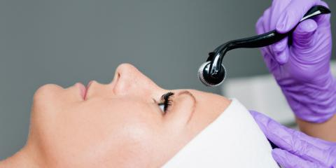 3 Skin-Tightening & Appearance-Enhancing Benefits of Microneedling, Milford, Connecticut