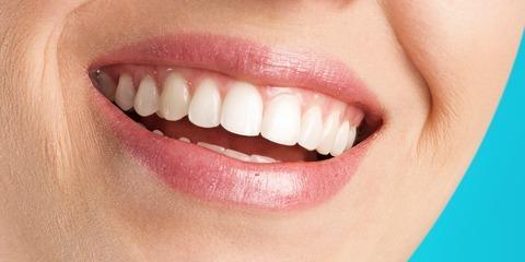 Milford Dentist Explains Side Effects of DIY Teeth Whitening, Miami, Ohio