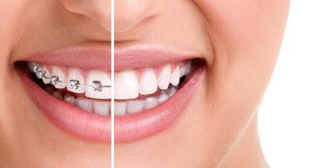 Invisalign® Vs. Traditional Braces: Which Is Right for You?, Miami, Ohio