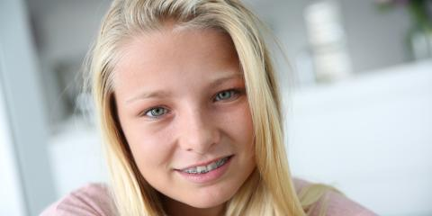 FAQs About Braces & Orthodontic Care, La Crosse, Wisconsin