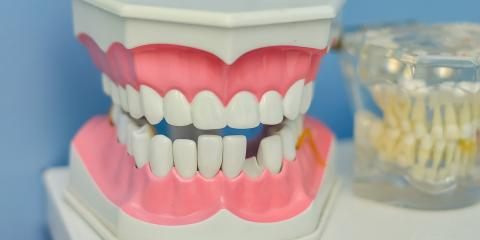 What Are the Benefits of Implant-Supported Dentures? , Elyria, Ohio