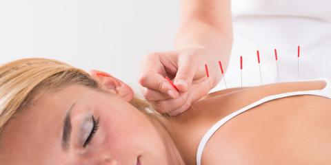A Short History of Acupuncture, Nyack, New York
