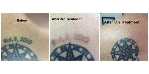 Laser Tattoo Removal: How The R20 Method Works, Tuckahoe, Virginia