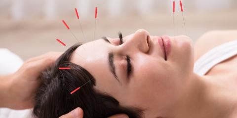 Can Acupuncture Improve Work Productivity?, North Hempstead, New York