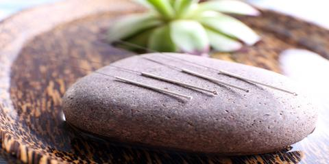 How Acupuncture Can Help Quit Smoking, Manhattan, New York