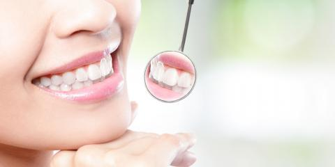Missing a Tooth? Why Dental Implants Are the Best Treatment Option, Manhattan, New York