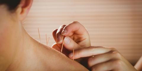 How Acupuncture Treats Neck Pain Caused by Stress, Manhattan, New York