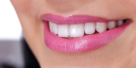 What Makes Professional Teeth Whitening Methods Unique?, Manhattan, New York