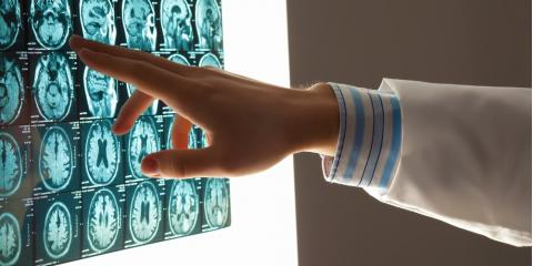 Traumatic Brain Injury: Classifications & Associated Complications, Auburn, New York