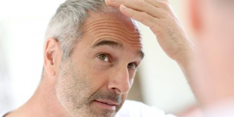 What You Need to Know About Men's Hair Loss , Rochester, New York