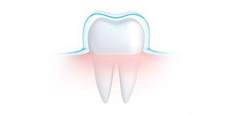 Why Do Teeth Shift? Dentists at NYC's United Dental Group Explain, Manhattan, New York