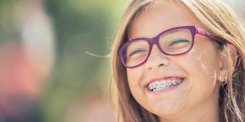 Have Braces? 3 Steps to Take If You Break a Bracket, North Richland Hills, Texas