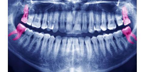 Why Some People Lack Wisdom Teeth, North Branch, Minnesota