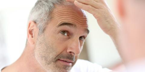 4 FAQs About Male Pattern Baldness, Rochester, New York