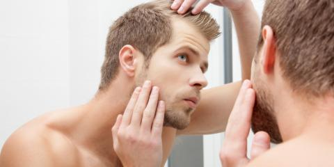 The Differences Between Male & Female Pattern Hair Loss, Rochester, New York