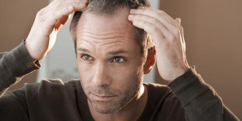 How Does Hair Restoration Work?, Rochester, New York