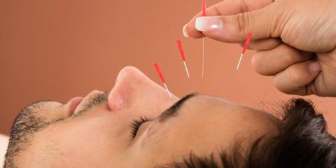 Why Does Acupuncture Relieve Pain?, Nyack, New York