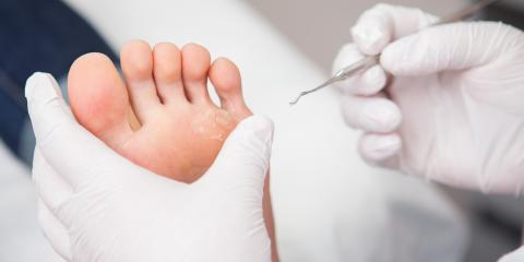 A Brief Guide to Ingrown Nails, Dardenne Prairie, Missouri