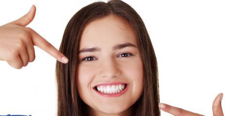Top 5 Benefits of Teeth Whitening, O'Fallon, Missouri