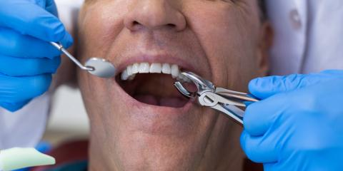 3 Tips for Recovering From a Tooth Extraction, Jackson, Ohio