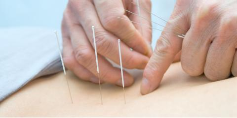 3 Ways Acupuncture & Chiropractic Care Will Help You Combat Pain, Springdale, Ohio