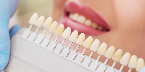 How Are Crowns & Veneers Different?, Chillicothe, Ohio